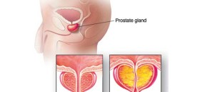 Black Men Most at Risk for Prostate Cancer